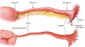 Figura 3: Porções da tuba uterina (Fonte – Coleção Netter de Ilustrações Médicas, 2015, acesso em https://issuu.com/elsevier_saude/docs/e-sample_smith_8bc5a6ef6ab2dc/26).