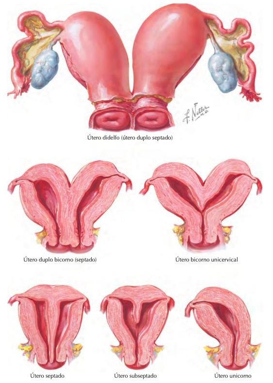 Figura 4: Malformações uterinas (Fonte: Coleção Netter de Ilustrações Médicas, 2015, acesso em https://issuu.com/elsevier_saude/docs/e-sample_smith_8bc5a6ef6ab2dc/24).