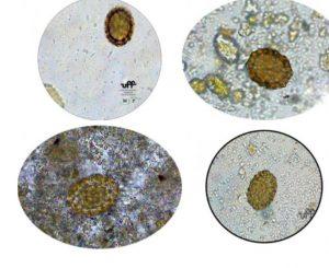 cisto ascaridíase ovos ascaris lumbricoides ovos lombriga