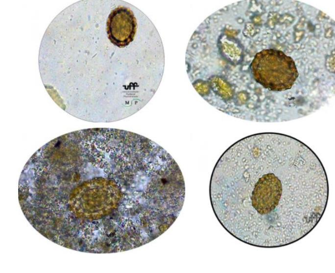 cisto ascaridíase ovos ascaris lumbricoides ovos lombriga ovos férteis