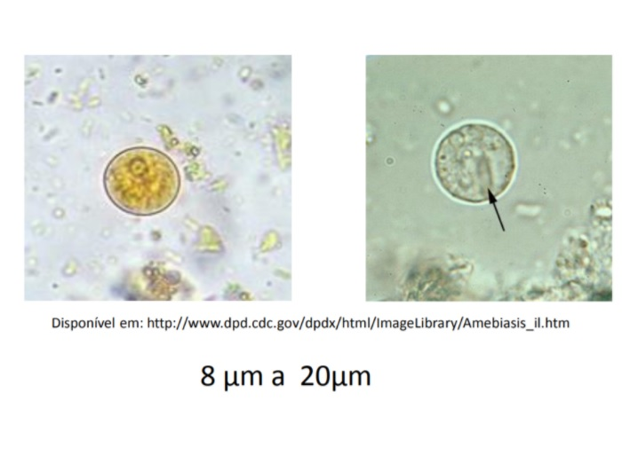 cisto entamoeba histolytica amebíase morfotlogia amebíase intestinal
