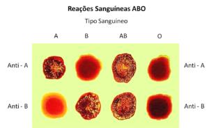 Imunoaglutinação reações sanguineas ABO