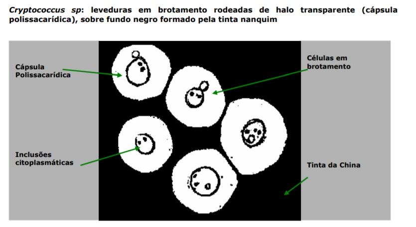 cryptococcus sp levedura brotamento fungo exame microscopia tinta da china células em brotamento fungo negro tinta nanquim microbiologia