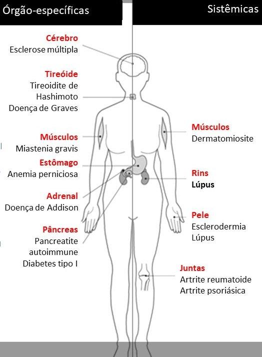 doenças autoimunes mais comuns Lúpus Eritematoso Sistêmico, Síndrome de Sjögren, Psoríase, Artrite Reumatoide, Vitiligo, Tireoidite de Hashimoto, a Doença de Crohn