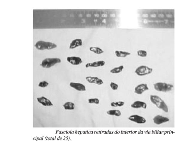 fasciola hepatica retirada da via biliar