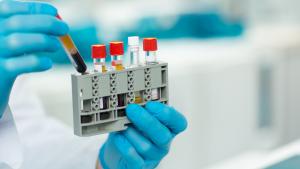 imunoaglutinação imunologia método imunológico