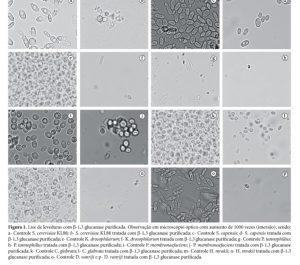 lise enzimatica levedura fungos filamentoso microscopia de fungos morfologia levedura miscoscopio óptico