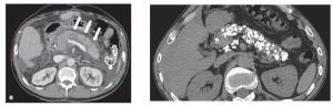 Amilase sérica exame de sangue amilase elevada pancreatite afuda tomografia