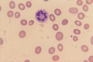 células do sangue displasia neutrófilos hipersegmentados sangue periférico vacúolos citoplasmáticos