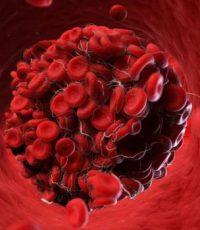 cascata de coagulação fatores de coagulacao sangue via extrinseca via intrinsica floculacao esquema cascata