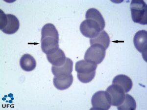 hemácias em rouleaux eritócitos células vermelhas