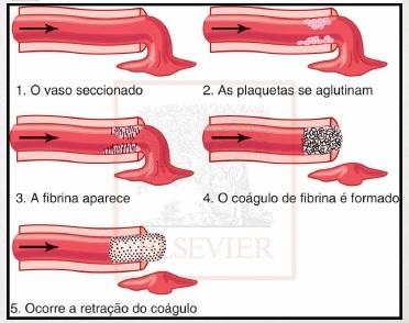 importancia da cascata de coagulacao vaso seccionado plaquetas aglutinadas fibrina coagulo de fibrina retracao coagulo esquema coagulacao
