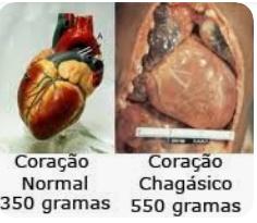 Trypanosoma cruzi doença de chagas coração com doença de chagas