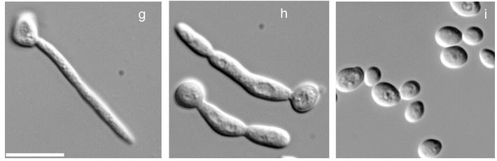 células dos fungos levedura hifa pseudo hifa