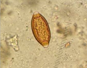 morfologia do Trichuris trichiura