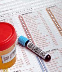 como interpretar exame toxicologico exame de sangue toxicologia drogas resultado do exame toxicológico