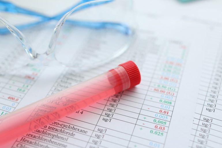 laudo do exame toxicológico urina positivo larga nanela toxicologico negativo droga positiva exame interpretar toxicologico analise exame toxicologico